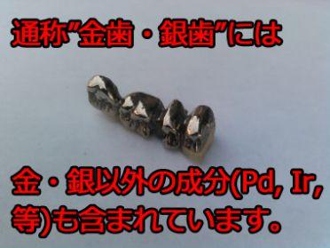 金歯・銀歯の成分